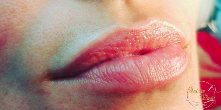 avant l'embellissement des lèvres maquillage permanent Sabine Valenti