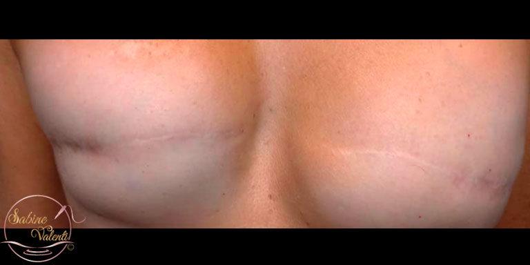 Avant reconstruction d'aréoles mammaires Sabine Valenti