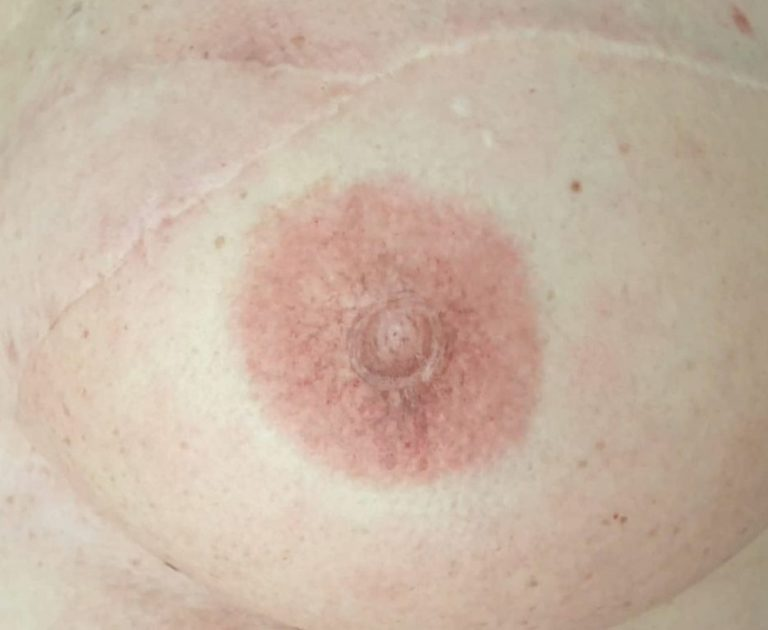 tatouage Aréole mammaire