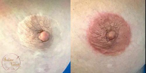 correction aréole mammaire